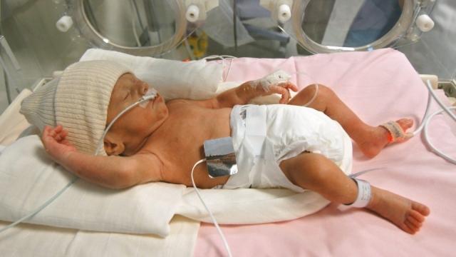 1 - A premature baby
